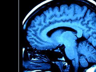 Φωτογραφία για Και νευρολογικά συμπτώματα από τον κορονοϊό