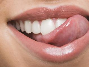 Φωτογραφία για Δάγκωμα, κάψιμο γλώσσας ή χείλους. Πρώτες βοήθειες