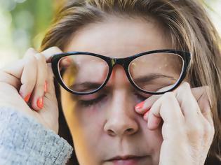 Φωτογραφία για Μην αγγιζετε τα μάτια σας, Νέα μελέτη λέει ότι ο κοροναϊός βρίσκεται στα δάκρυα