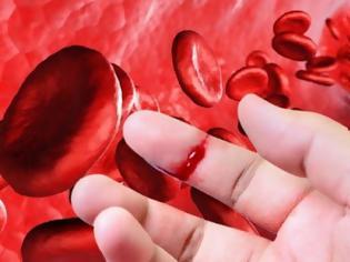 Φωτογραφία για Αιμορροφιλία. Τι είναι, τι προκαλεί και πώς αντιμετωπίζεται; Πρώτες βοήθειες αιμορραγικού επεισοδίου