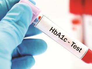 Φωτογραφία για Τι είναι η γλυκοζυλιωμένη αιμοσφαιρίνη HbA1c και τι δείχνει η μέτρησή της στον σακχαρώδη διαβήτη;