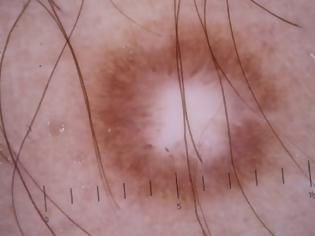 Φωτογραφία για Δερματοΐνωμα δερματική βλάβη που μοιάζει με σπυράκι, είναι σκληρό σαν να έχει κάτι μέσα