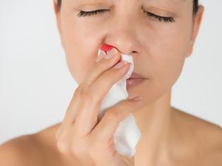 Φωτογραφία για Γιατί ματώνει η μύτη; Ρινορραγία, επίσταξη. Τι πρέπει να κάνουμε; (video)