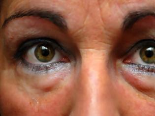 Φωτογραφία για Μαύροι κύκλοι, σακούλες στα μάτια. Ποιες οι αιτίες; Φυσικά μέσα, σπιτικές μάσκες ματιών για αντιμετώπισή τους