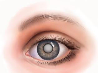 Φωτογραφία για Καταρράκτης η συχνότερη αιτία μείωσης της όρασης, σε όλο τον κόσμο