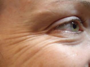 Φωτογραφία για Ρυτίδες, αιτίες που τις προκαλούν. Οδηγίες πρόληψης και τρόποι αντιμετώπισης