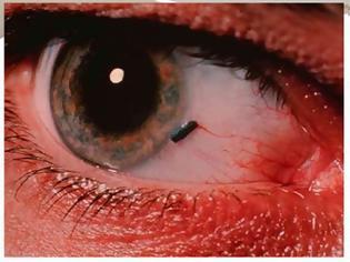 Φωτογραφία για Ξένο σώμα στο μάτι. Τι πρέπει να κάνετε αν μπει κάτι στο μάτι σας; Πρώτες βοήθειες