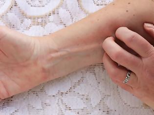 Φωτογραφία για Έκζεμα: Έρευνα αποκαλύπτει ότι αυξάνει τον κίνδυνο για ένα συχνό πρόβλημα της μέσης ηλικίας