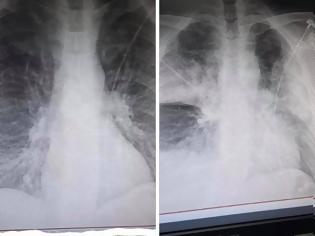 Φωτογραφία για Σοκάρει ακτινογραφία πνευμόνων ασθενούς με κοροναϊό, με διαφορά ωρών