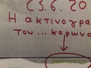 Φωτογραφία για Κορονοϊός: Fake news η είδηση «σοκ» με την ακτινογραφία 38χρονου ασθενή με κορονοϊο