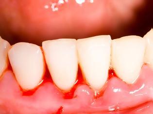 Φωτογραφία για Γιατί ματώνουν τα ούλα και γιατί κουνιούνται τα δόντια;