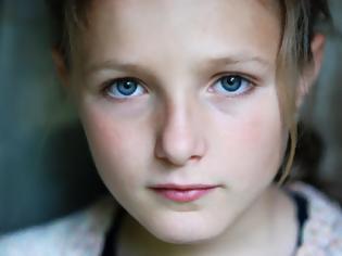 Φωτογραφία για Σύνδρομο RETT Τι είναι και γιατί επηρεάζει κυρίως τα κορίτσια; Ποια τα συμπτώματα;