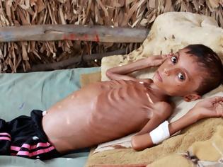 Φωτογραφία για Εκατοντάδες χιλιάδες παιδιά θα πεθάνουν από πείνα λόγω της πανδημίας