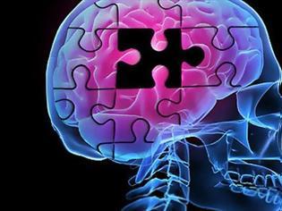 Φωτογραφία για Πειραματικό φάρμακο επιβραδύνει την επιδείνωση της νόσου Αλτσχάιμερ