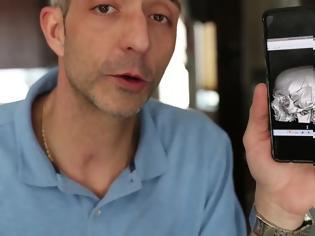 Φωτογραφία για Ο φριχτός τραυματισμός άφησε το κρανίο του σπασμένο σε 10 κομμάτια: «Ήταν σαν παζλ»