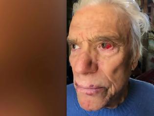 Φωτογραφία για Άσχημα χτυπημένος ο δισεκατομμυριούχος Μπερνάρ Ταπί και η σύζυγός του -Τους έδεσαν, έκλεψαν Rolex και κοσμήματα