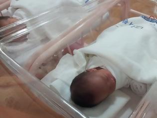 Φωτογραφία για Ιράκ : Γεννήθηκε αγόρι με τρία πέη – Πρώτη καταγεγραμμένη περίπτωση στα χρονικά