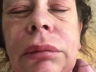 Φωτογραφία για Γυναίκα που έκανε το εμβόλιο της AstraZeneca καταγγέλλει: «Μεταμορφώθηκα σε εξωγήινο τέρας»