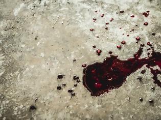 Φωτογραφία για Φριχτό έγκλημα: Μητέρα προσπάθησε να κόψει τη γλώσσα του 10χρονου γιου της πριν τον σκοτώσει