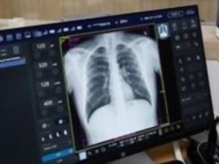 Φωτογραφία για Οι συνέπειες της COVID-19 στους πνεύμονες και σε άλλα όργανα του σώματος που οδηγούν στον θάνατο