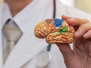 Φωτογραφία για ΗΠΑ: Εγκρίθηκε από την FDA σκεύασμα για τη θεραπεία του Αλτσχάιμερ