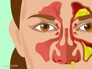Φωτογραφία για Τύποι εκκριμάτων της μύτης και τι δείχνουν για την υγεία σας