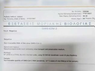 Φωτογραφία για Αυτά είναι τα «μαϊμού» μοριακά τεστ των 10 ευρώ