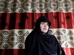 Φωτογραφία για Αφγανιστάν: Συγκλονίζει γυναίκα που της έβγαλαν τα μάτια οι Ταλιμπάν, «ταΐζουν τα σκυλιά με νεκρές γυναίκες»