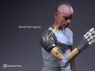 Φωτογραφία για Τεχνητό χέρι υπόσχεται αποκατάσταση την αίσθηση της αφής