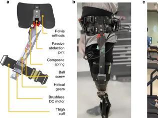 Φωτογραφία για Ένας νέος «έξυπνος» εξωσκελετός βελτιώνει σημαντικά τη βάδιση των ασθενών με ακρωτηριασμό πάνω από το γόνατο
