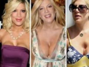 Φωτογραφία για Τα χειρότερα ψεύτικα στήθη του Χόλιγουντ