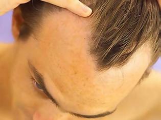Φωτογραφία για Ελπίδες για τη θεραπεία της φαλάκρας
