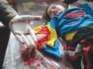 Φωτογραφία για Οι εισαγόμενοι μισθοφόροι αντάρτες της Συρίας σκοτώνουν και παιδιά