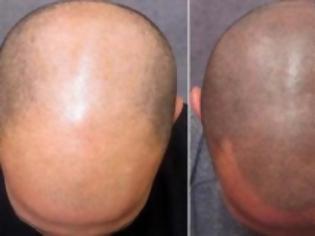 Φωτογραφία για Τατουάζ κατά της φαλάκρας
