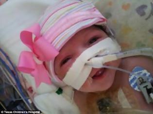 Φωτογραφία για Μωρό γεννήθηκε με την καρδιά έξω από το σώμα του