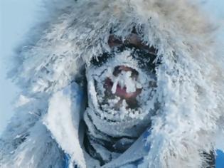 Φωτογραφία για Νευρολογική παρέμβαση καταργεί το αίσθημα του κρύου
