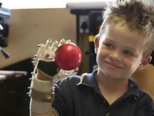 Φωτογραφία για Το 3D printing βοηθάει στην δημιουργία τεχνιτών μελών για άτομα με αναπηρία! [Video]