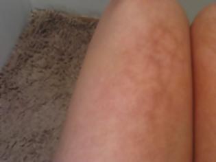 Φωτογραφία για Eπικίνδυνα τα εγκαύματα από τη θερμότητα του λάπτοπ, σύμφωνα με νέα έρευνα