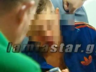 Φωτογραφία για Λαμία: Αιμόφυρτος νεαρός Αλβανός καταγγέλλει πως τον έδειρε Χρυσαυγίτης [video]