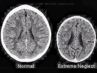 Φωτογραφία για Πως είναι ο εγκέφαλος ενός παιδιού που δεν μεγαλώνει με αγάπη;