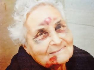 Φωτογραφία για H φωτογραφία από το νησί της Κεφαλονιάς που ΣΥΓΚΛΟΝΙΖΕΙ - Η ηλικιωμένη που πληγώθηκε από το σεισμό και χαμογελά με ελπίδα