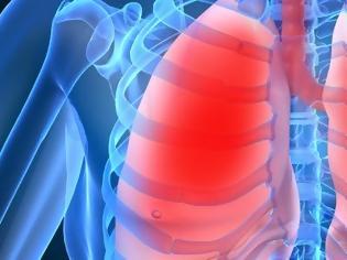 Φωτογραφία για Συμβουλές προς καπνιστές και όχι μόνο: Τέσσερις τροφές που καθαρίζουν τα πνευμόνια