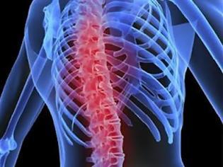 Φωτογραφία για Ελπίδα για την οστεοπόρωση από έρευνα του Πανεπιστημίου Ιωαννίνων