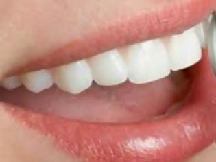 Φωτογραφία για Όλα όσα χρειάζεται να ξέρετε για τη λεύκανση δοντιών