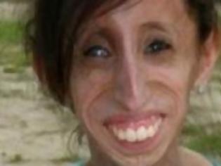 Φωτογραφία για Σοκ: Αυτή η γυναίκα πρέπει να τρώει κάθε 15 λεπτά! [pics]