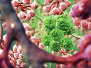 Φωτογραφία για Τέλος οι χημειοθεραπείες! Αυτή είναι η νέα μέθοδός καταπολέμησης του καρκίνου...