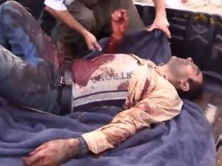 Φωτογραφία για Παγκόσμια φρίκη από τον τουρκικό βομβαρδισμό με θύματα Κούρδους αμάχους