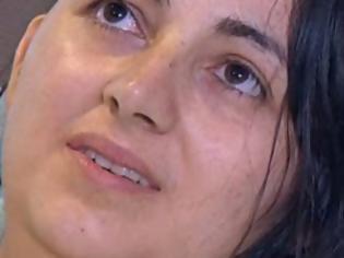 Φωτογραφία για Η τρομακτική αιτία των πονοκεφάλων αυτής της γυναίκας άφησε με το στόμα ανοιχτό ακόμα και τους γιατρούς