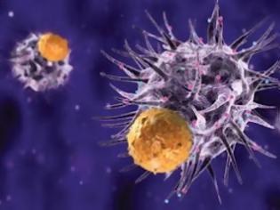 Φωτογραφία για Τα οκτώ σημάδια της εμφάνισης του καρκίνου