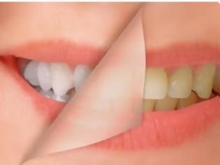Φωτογραφία για Πράγματα που κιτρινίζουν τα δόντια σου και σίγουρα δε το ήξερες!